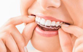 Ortodonzia per bambini e adulti